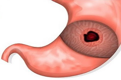 حقائق واكتشافات: أعراض تؤكد إصابتك بقرحة المعدة تعرف عليها وتعرف على كيفية علاج هذه المشكلة
