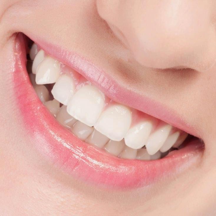 Cara Memutihkan Gigi dengan Cepat dan Mudah
