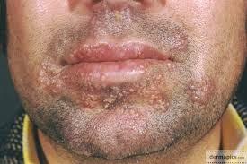 herpes wajah