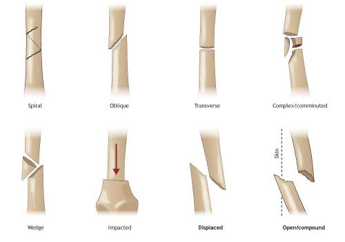 Norman K. Poppen MD: Buckle and stress: The different types of fracture