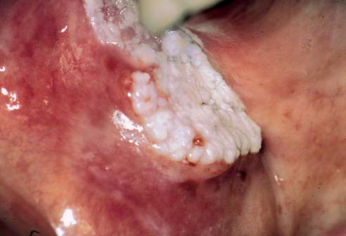 White Lesions Of Oral Mucosa Dentistry And Medicine