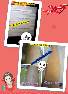 1 year leg scar improved within 7 days after using Ameryllis Herbal balm