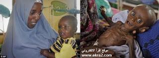 صورة طفل صومالي قبل وبعد المساعدات الدولية
