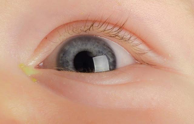 Mata Bayi Belekan