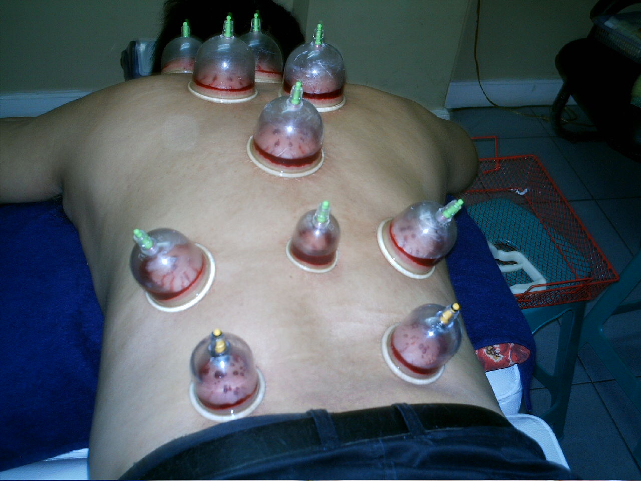 Al Hijama / The Cupping Therapy