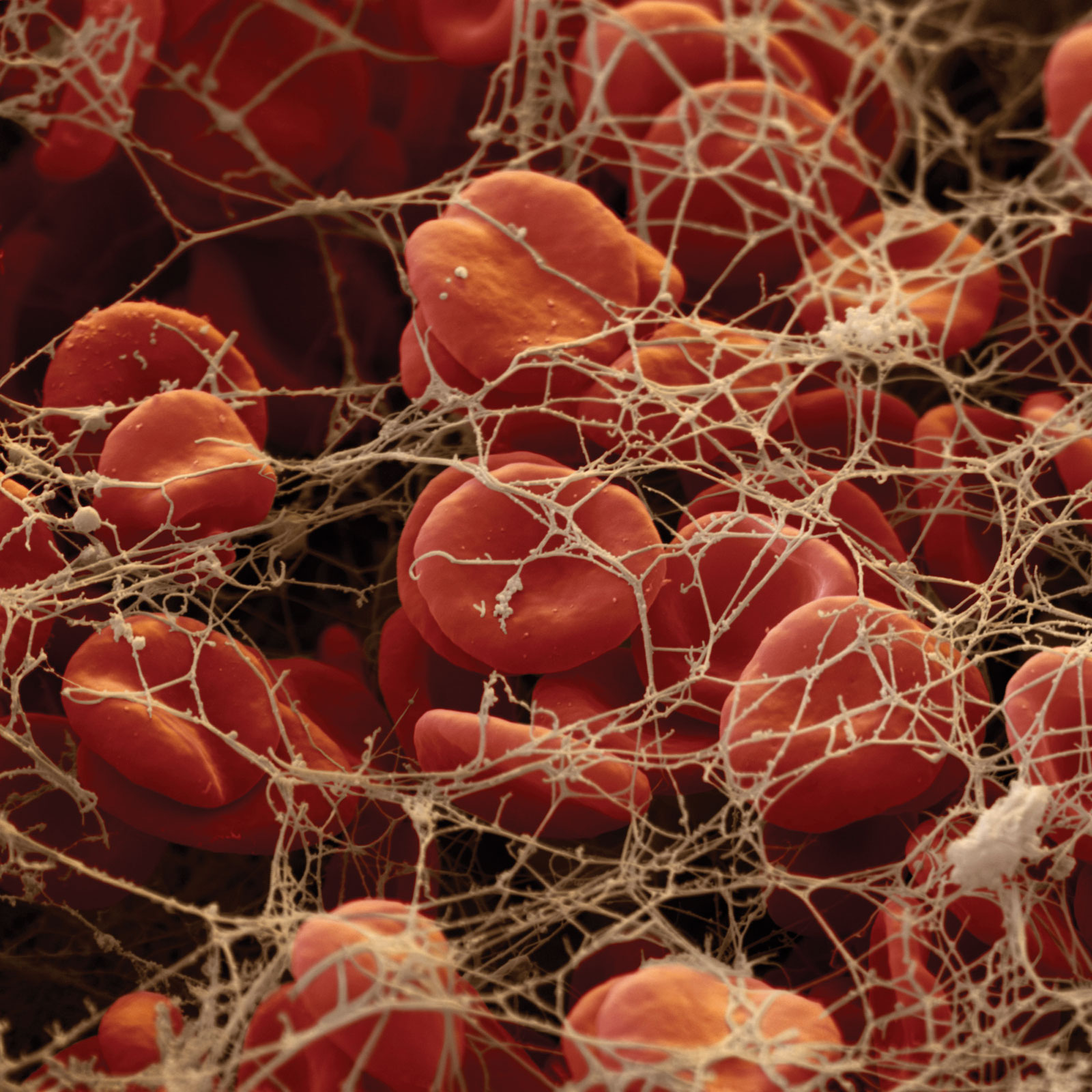 blood clotting This guide describes ways to prevent and treat blood clots, symptoms, and medication side effects as well as when to go to the emergency room.