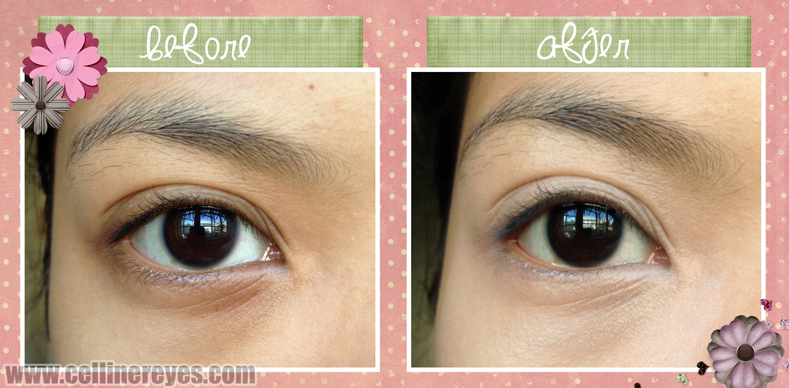 Best makeup for dark circles around eyes