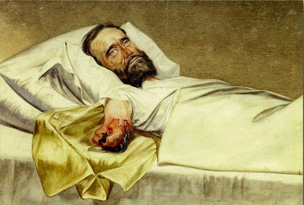 Gangrena do braço amputado no hospital, Eduard Stauch, Milton E. Wallen, pintura macabra, mortalha
