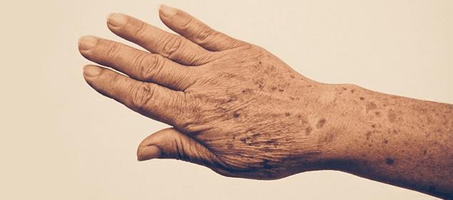 C mo atenuar las manchas de la piel de forma natural soluciones caseras remedios naturales y - Remedios caseros para quitar la mala suerte ...