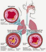 Pengobatan Tradisional Penyakit Asma