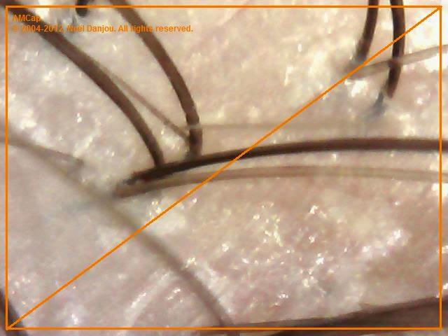 efekt po zabiegu skóra łuszczyca