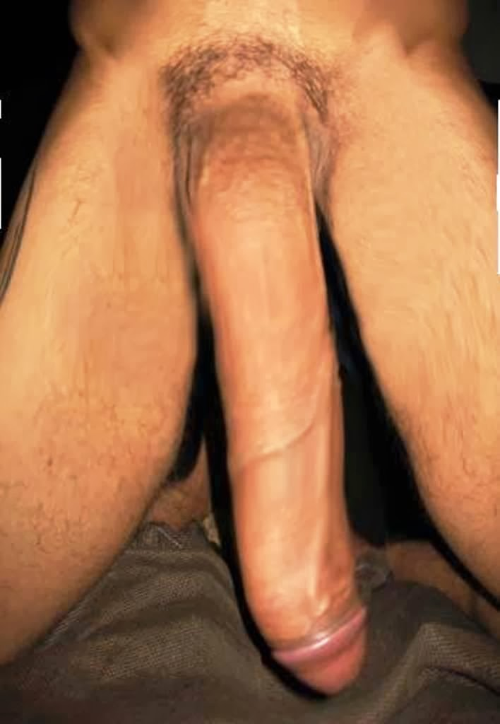 Penis of monstrous size