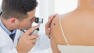 http://alternatifpengobatanalami.blogspot.co.id/2015/10/pengobatan-alami-kanker-kulit-melanoma.html