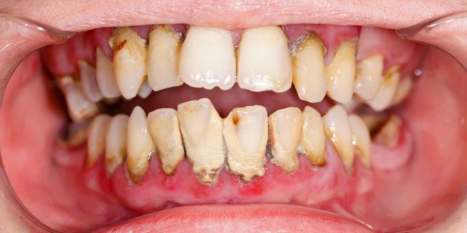 Cara Ampuh Membuang Karang Gigi Secara Alami