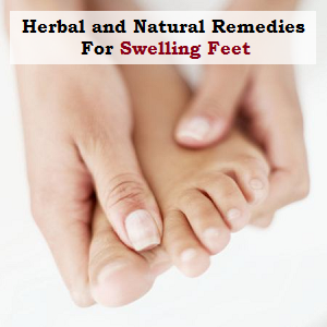 Herbal and Natural Remedies For Swelling Feet