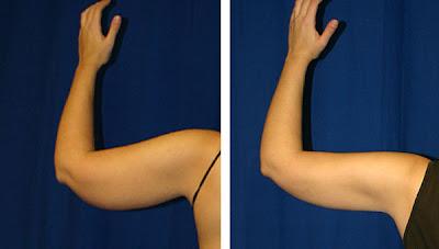 fotos antes y despues de lipolaser de brazos braquioplastia Salutaris Guadalajara Mexico