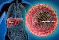 Cara Mengobati Penyakit Hepatitis B Secara Tradisional