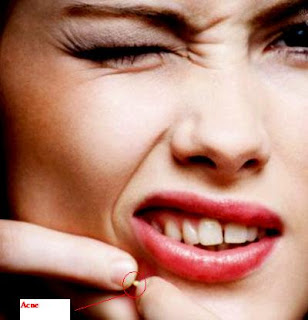 many causes of acne