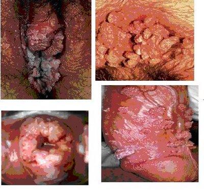 Enfermedades venereas papiloma humano fotos 8