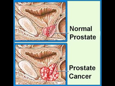 Propecia reduces prostate cancer