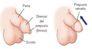 circoncisione pene