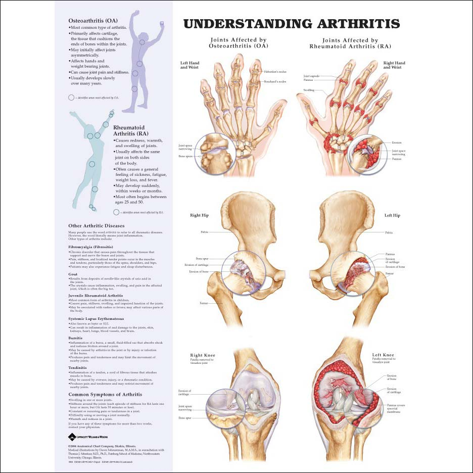 HEALTH WISE: Arthritis and its effects