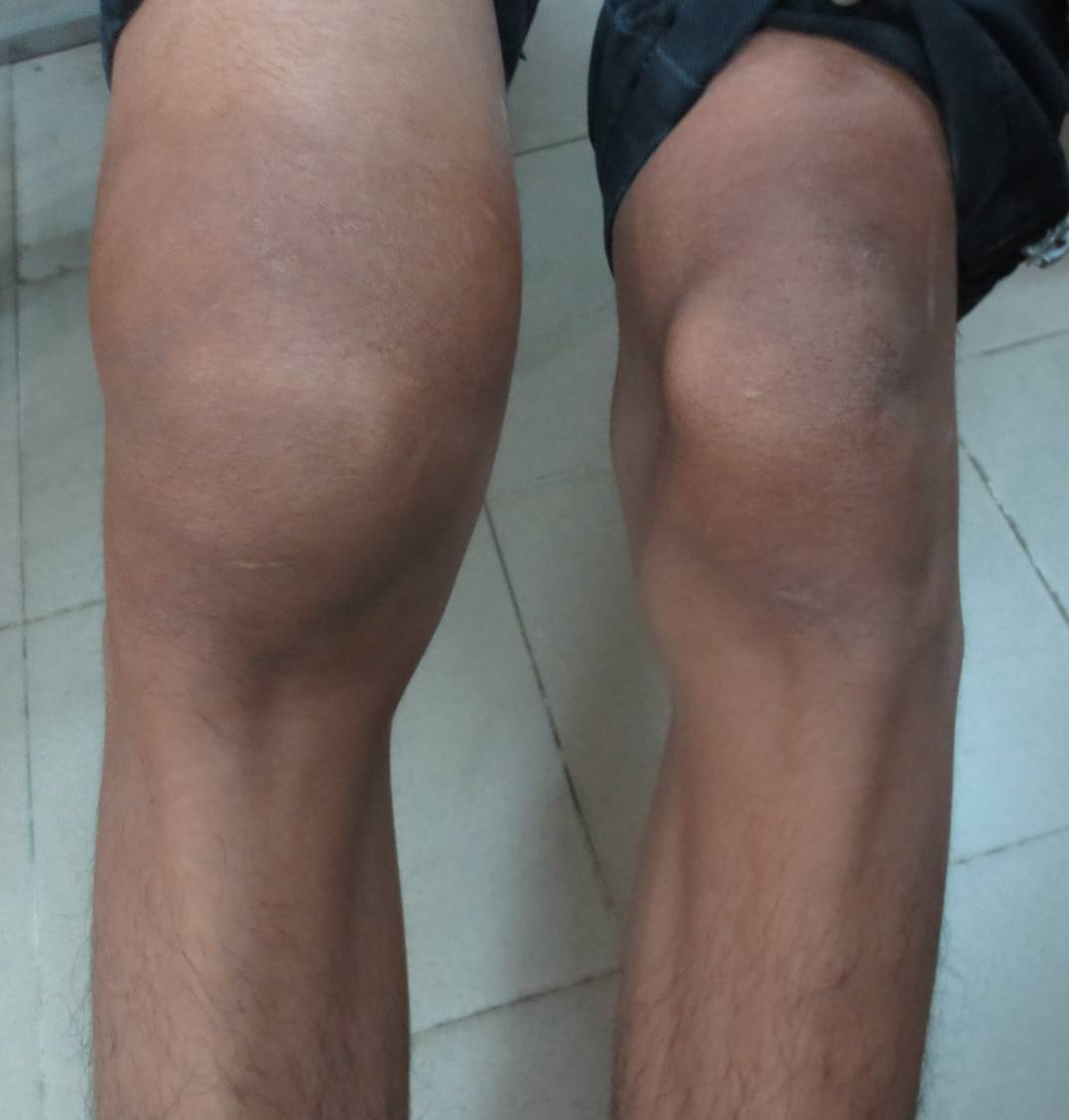 VIETNAMESE MEDIC ULTRASOUND: CASE 166: SWELLING of DISTAL THIGH ...