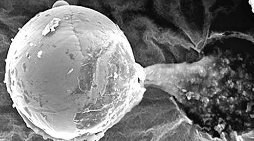 """""""Esfera de metal biológico"""" de otro mundo, descubierto en la estratosfera"""