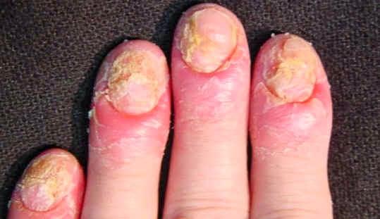 Los medios baratos del hongo de las uñas de los pies