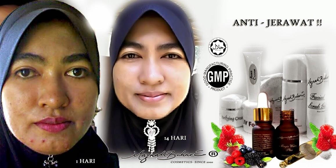 Set Jerawat RM290