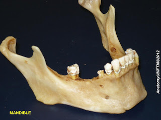 Picture of a human mandible
