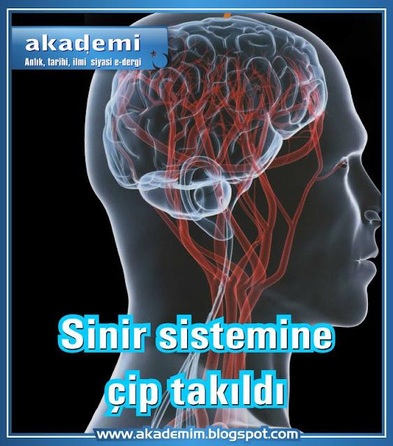 Sinir sistemine çip takıldı
