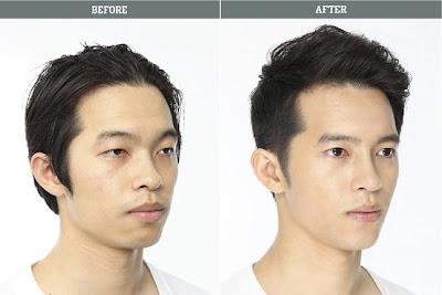 korean-surgery