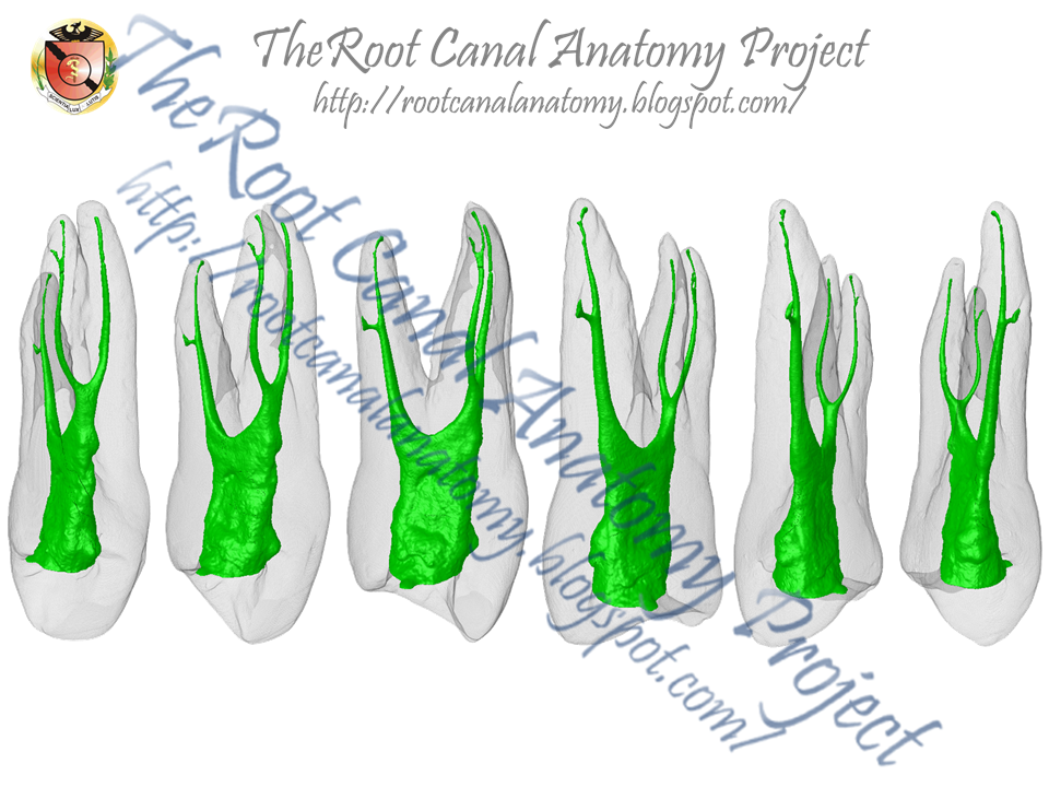 The Root Canal Anatomy Project: Three-Rooted Maxillary First Premolar