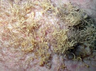 Macchia scura su pelle con scale