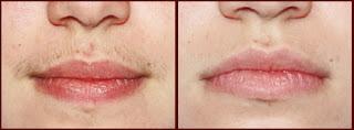 Nëse keni qime të trasha, të errëta në trup apo në fytyrë, kjo mund të tregojë se jeni të prekur nga