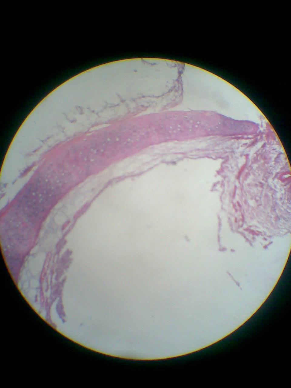 Trachea..hyalin...