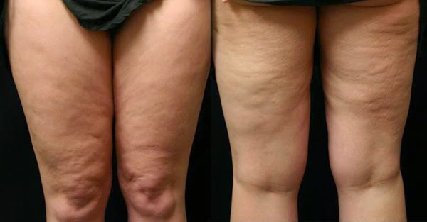 What Your Cellulite Says About Your Health