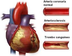 que es la arteriosclerosis