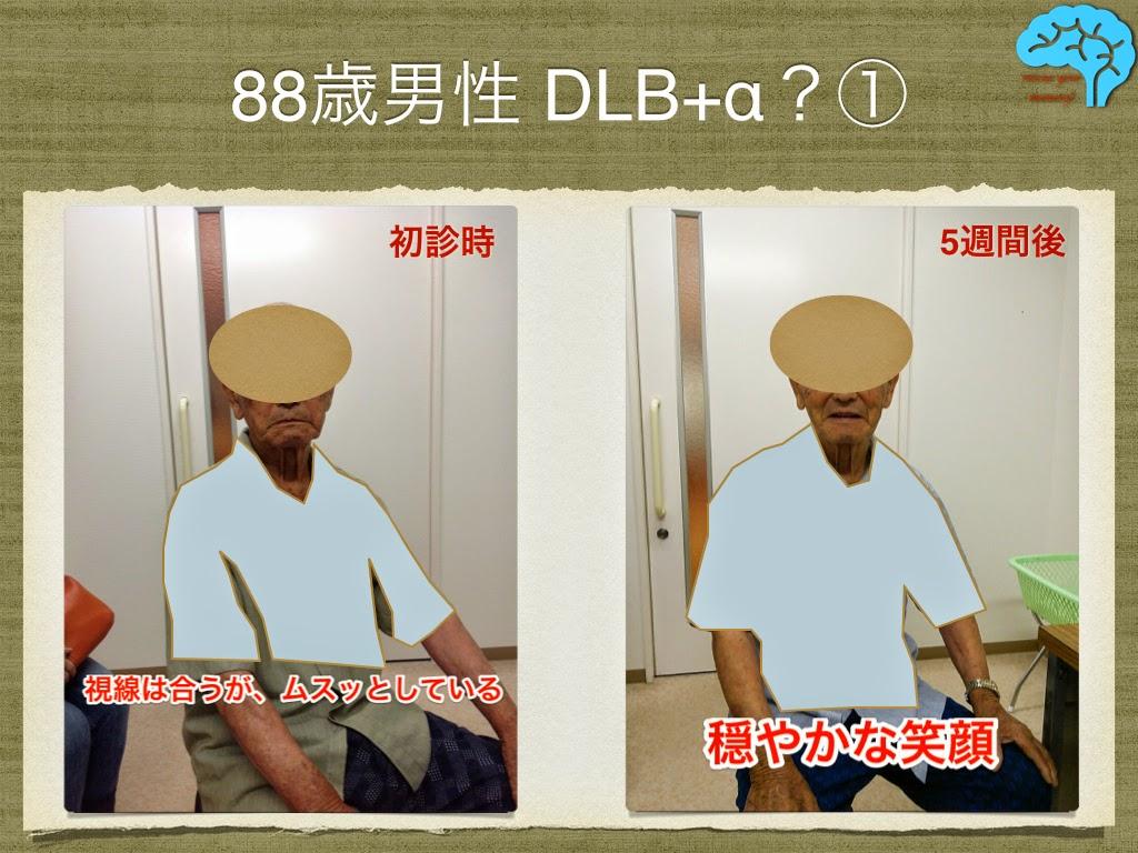 88歳男性、DLB改善例