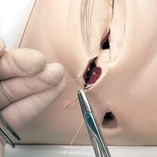 cara sembuhkan luka bersalin normal