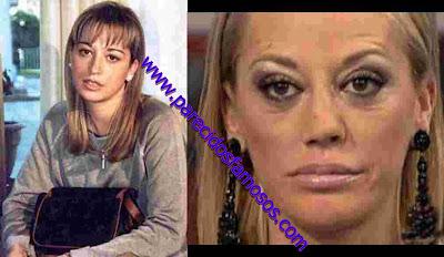 Belén Esteban antes y después