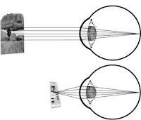 pengertian akomodasi (akomodasi mata)