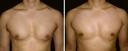 Gynecomastia, Bodybuilding, and Steroids
