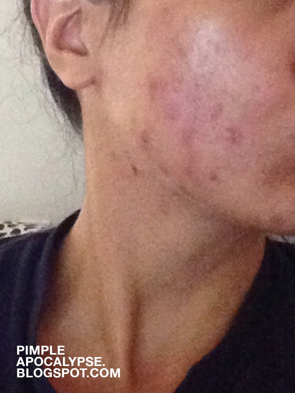 acne breakouts, clogged pores, asian skin, hyper pigmentation, closed comedo, whiteheads, benzoyl peroxide