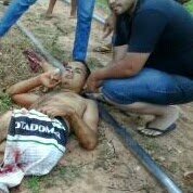 Feriado trágico em Caxias: Jovem sofre acidente com trem e tem perna amputada e morre no Hospital. Confira o Vídeo!!!