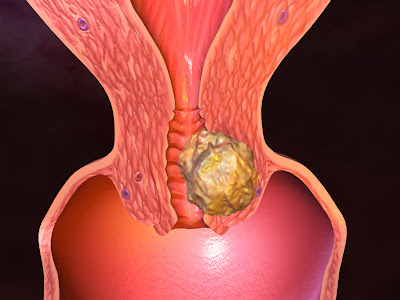 Of lymph nodes uterine cancer gynecology cancer sign and symptoms