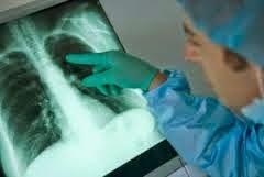 penyakit paru paru basah dan cara pengobatannya