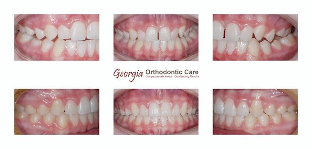 palatal expander, dental expansion, arch expansion, dental crossbite
