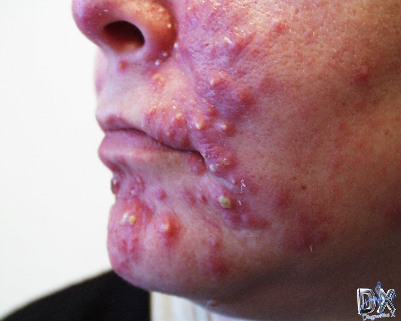 El dermatólogo por el acné